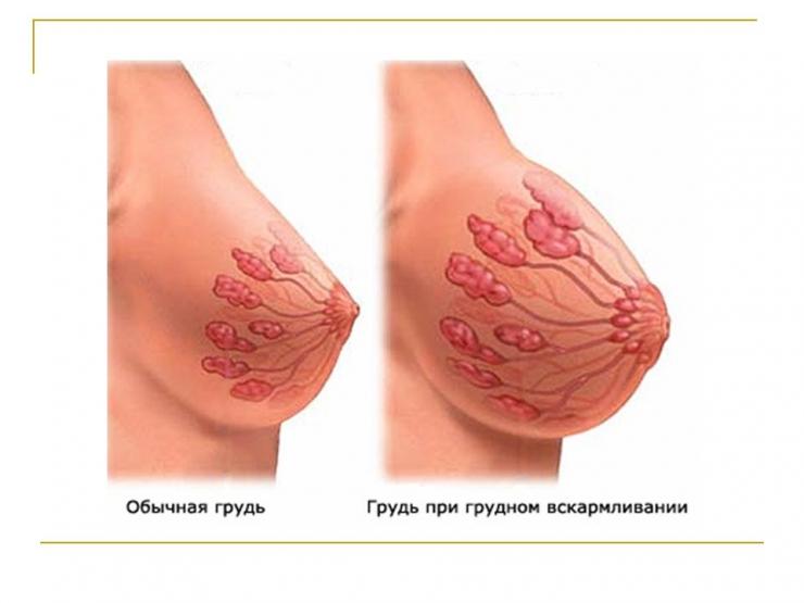 Почему болит грудь при беременности и что делать, если болит грудь при бере