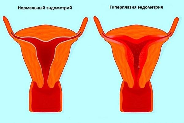 При гиперплазии эндометрия