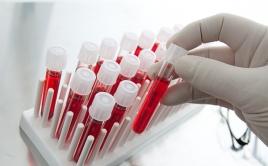 Забор анализа крови